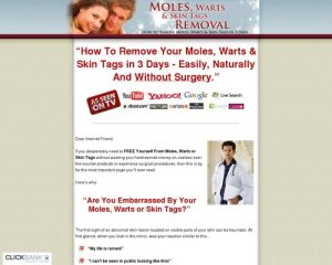 Moles, Warts & Skin Tags Removal - How To Safely & Permanently Remove Moles, Warts & Skin Tags